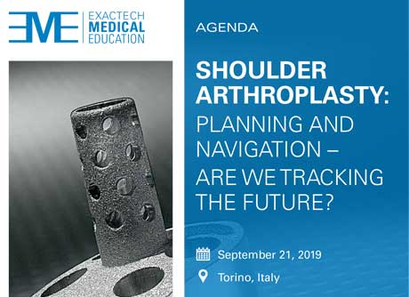 SHOULDER ARTHROPLASTY: PLANNING AND NAVIGATION – ARE WE TRACKING THE FUTURE?